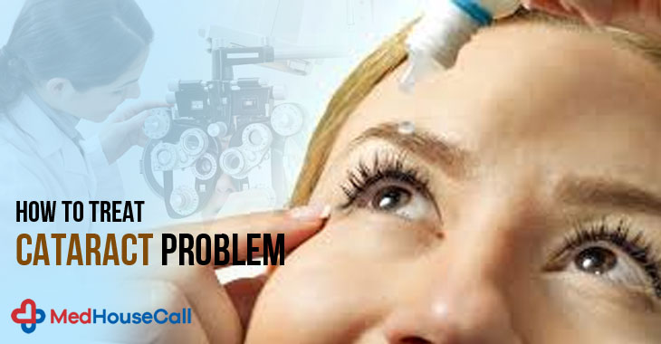 How To Treat Cataract Problem