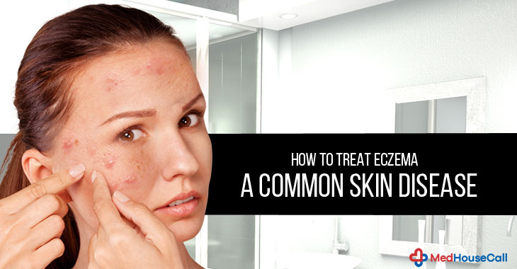 How To Treat Eczema – A Common Skin Disease